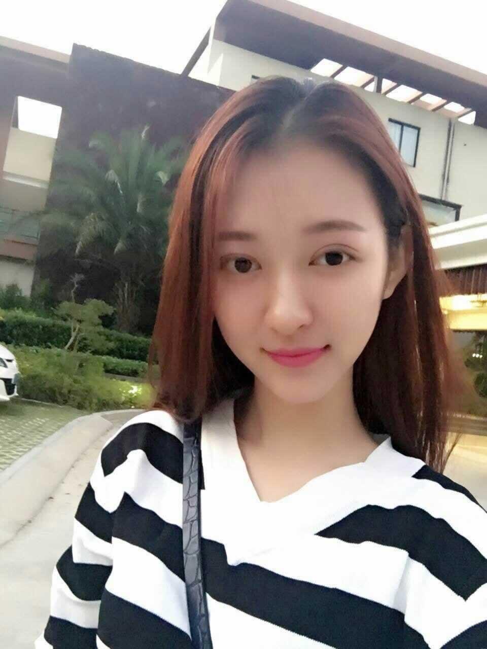 今天很开森给大家分享下本仙女在深圳蒳美迩做双眼皮修复的效果