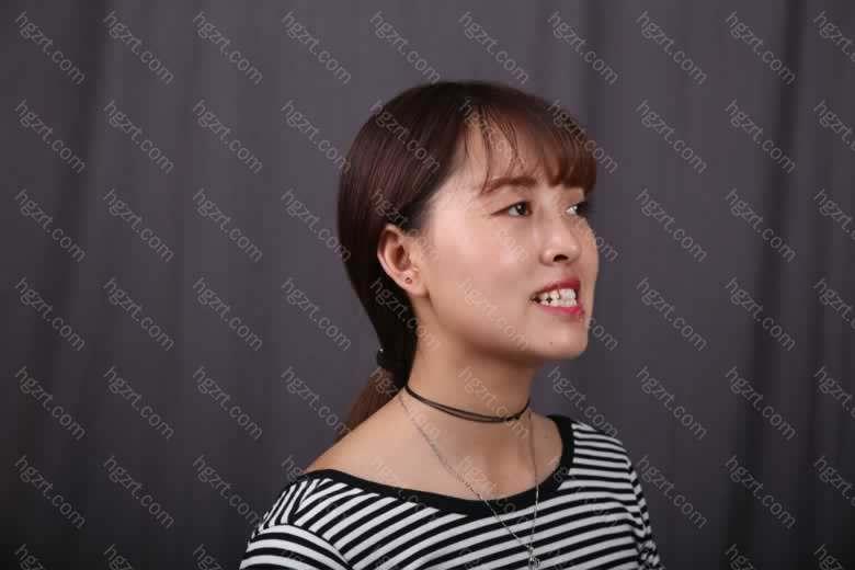 只要你因为凌乱的牙齿在看到喜欢的人时候不敢开口大笑