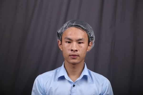 嗯这些是当时去上海华美医院做激光祛痘套餐的存照