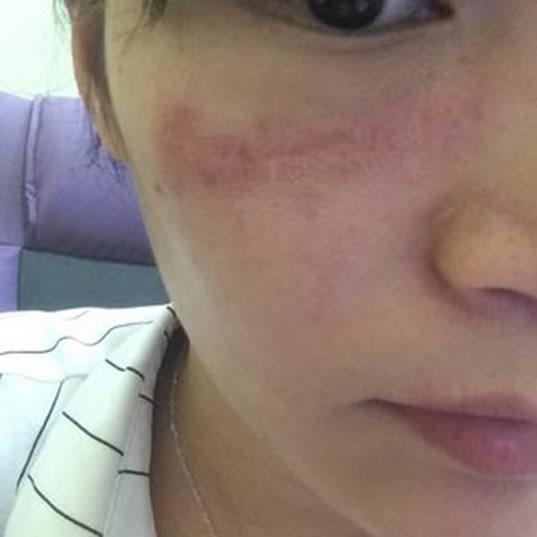 来讲讲鄙人在上海江城医疗美容的激光祛疤初体验
