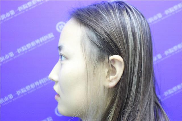 朋友的介绍我来到哈尔滨市first医院整形外科做韩式PARK双眼皮手术