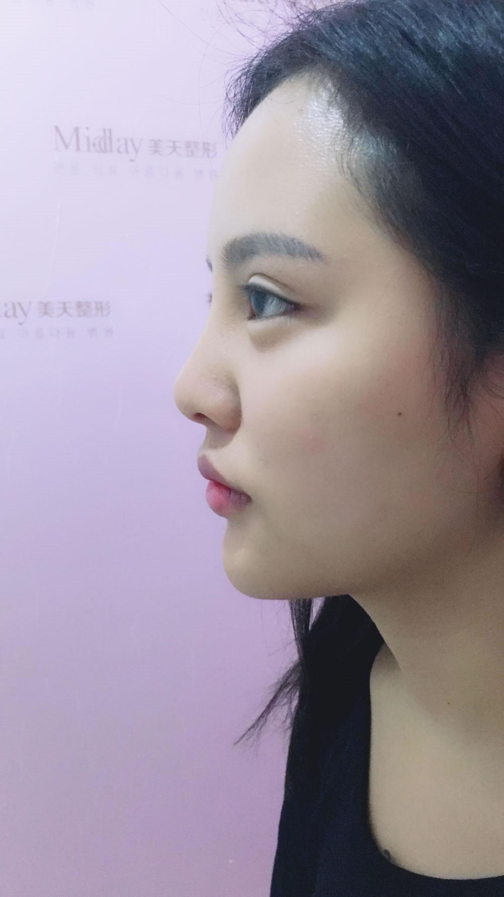 武汉美天做的鼻修复跟假体下巴,听朋友说美天朱院长的技术很出名