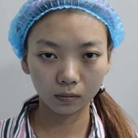 做个记录:上海江城医院玻尿酸去法令纹以及隆鼻