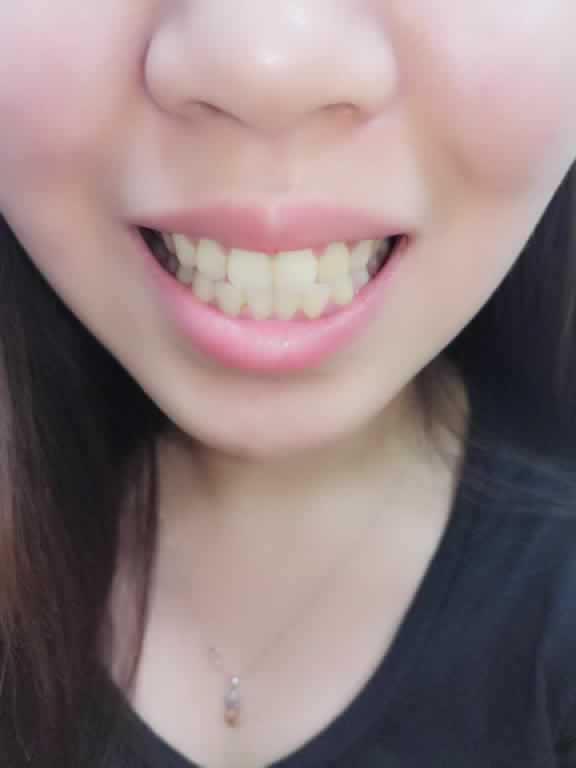 终于不用捂嘴笑了!在武汉新至美医院做滴白白牙齿