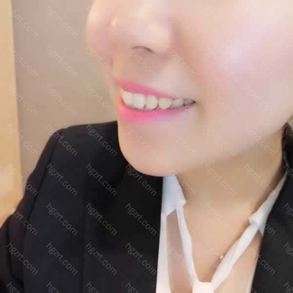 还是把牙齿美白了好啊!牙齿白了人都自信了