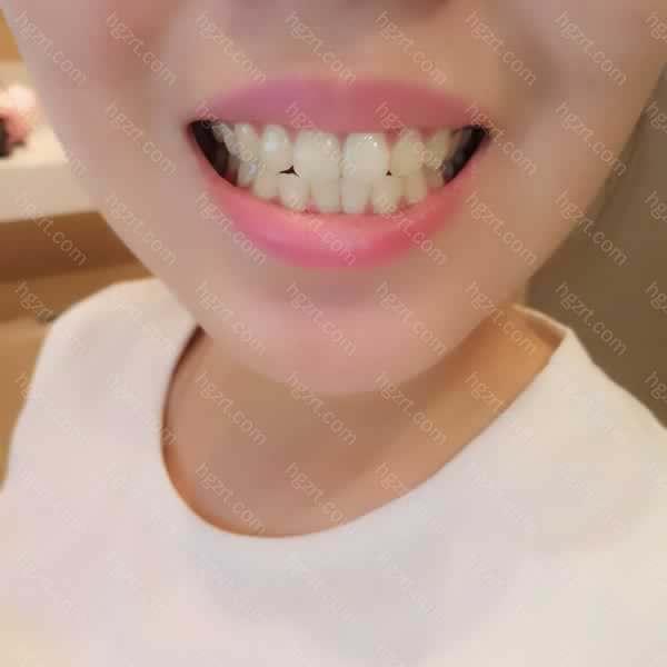 前两天跟朋友们出去玩他们都还夸我的牙齿白的好好看!真的是越看越喜欢!牙齿美白在很大程度上提升了个人的颜值