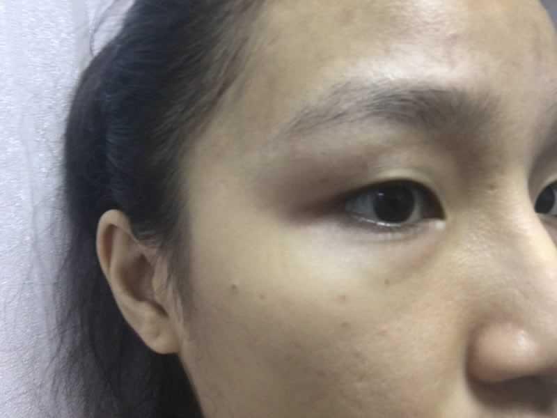 一个双眼皮而已估计够我嘚瑟很久了,完全跟天生的没啥不一样了