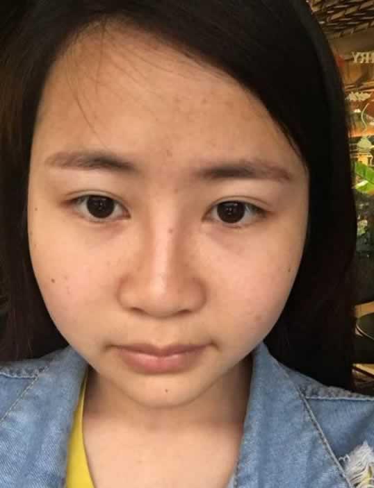 讲讲到中山美尔医院打瘦脸针感受,一定可以帮到大脸的你