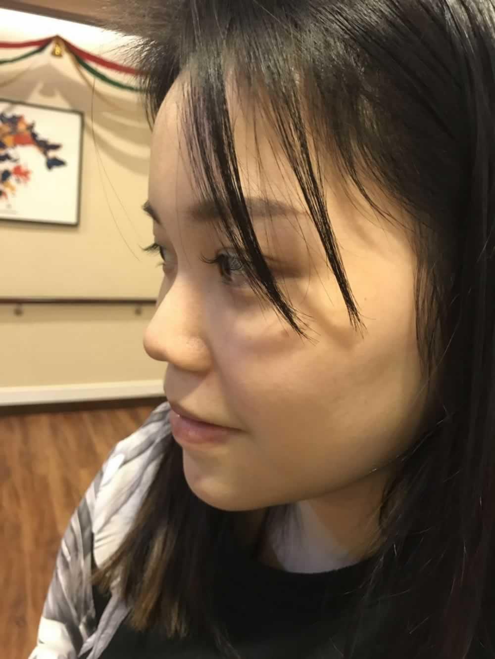 看看做的鼻综合效果,脸立马有了立体感。