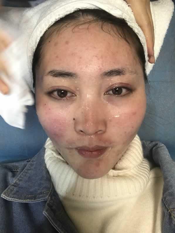 光子嫩肤+小气泡治疗后干净肌肤看得见