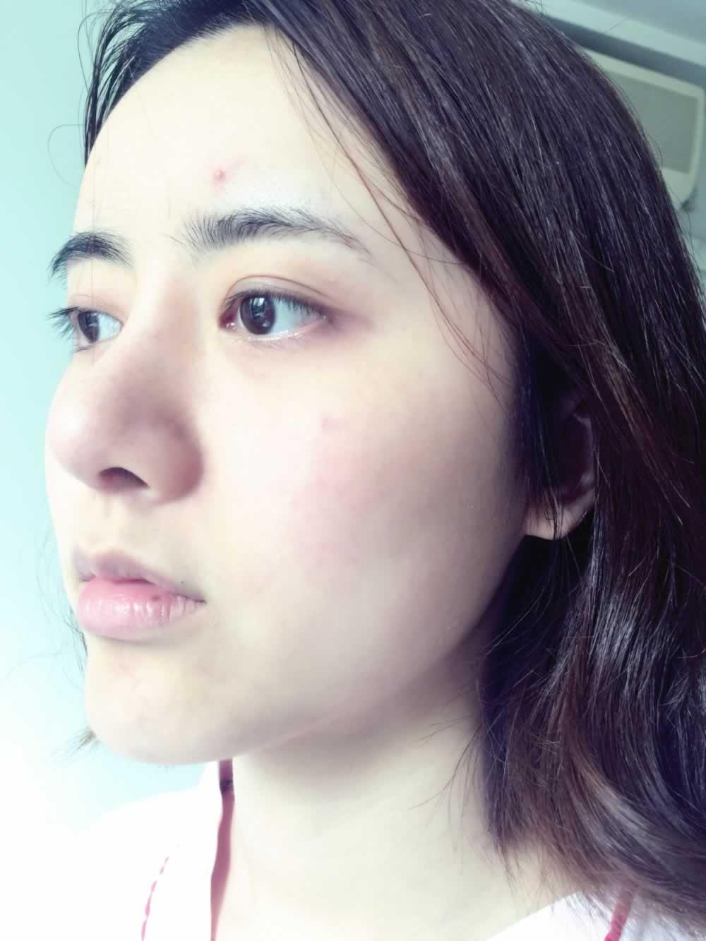 自体脂肪填充术后处理与风险?想做开外眼角自体脂肪隆鼻全脸塑形能一起做吗外加种植睫毛