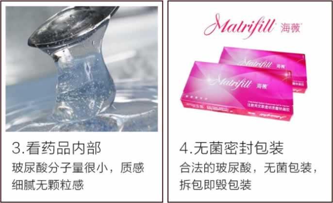 北京凯润婷医疗美容医院 460元 注射微整