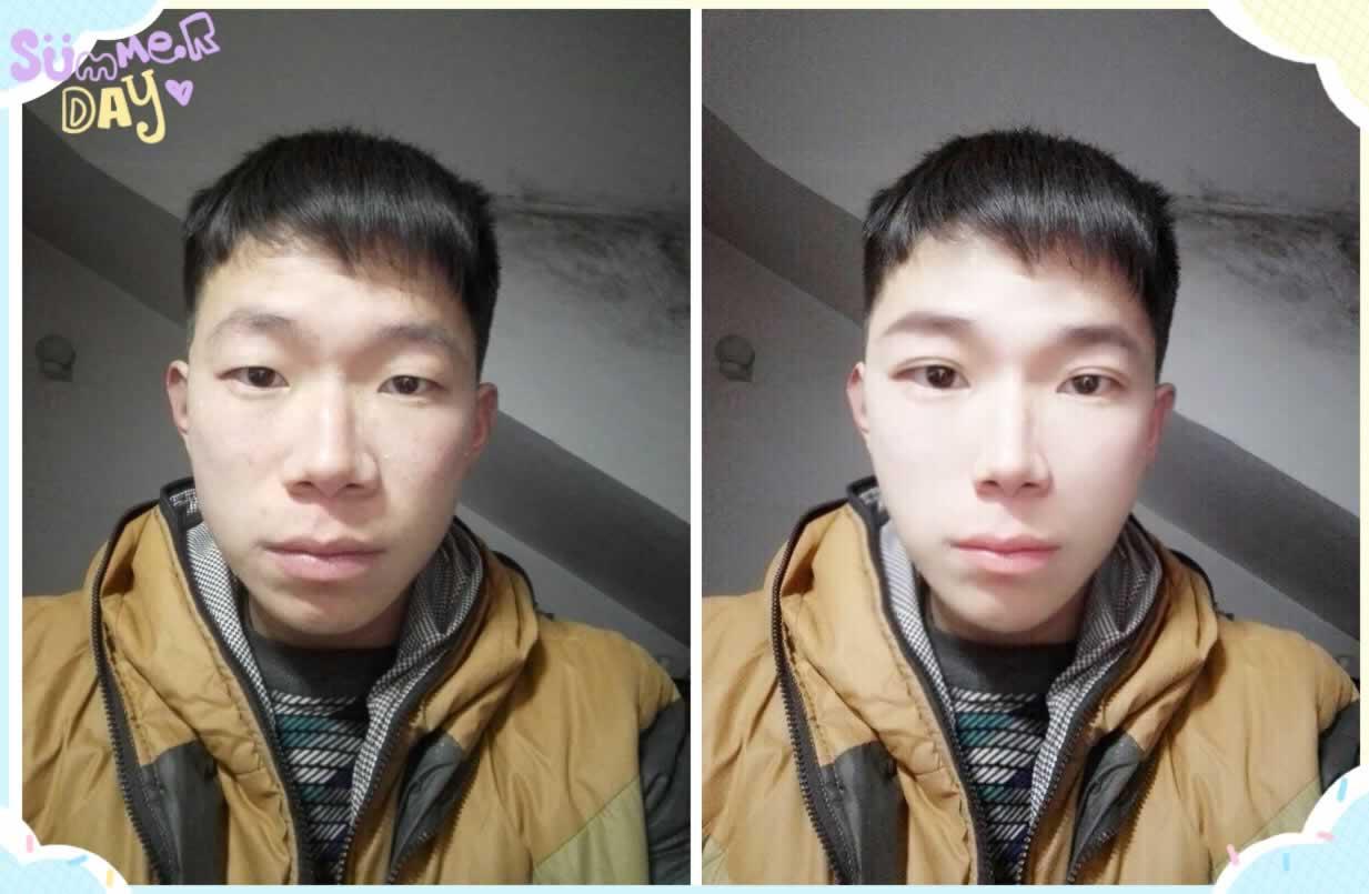 opt嫩肤效果怎么样,first次效果明显吗。脸上有点斑想去掉过年美美哒