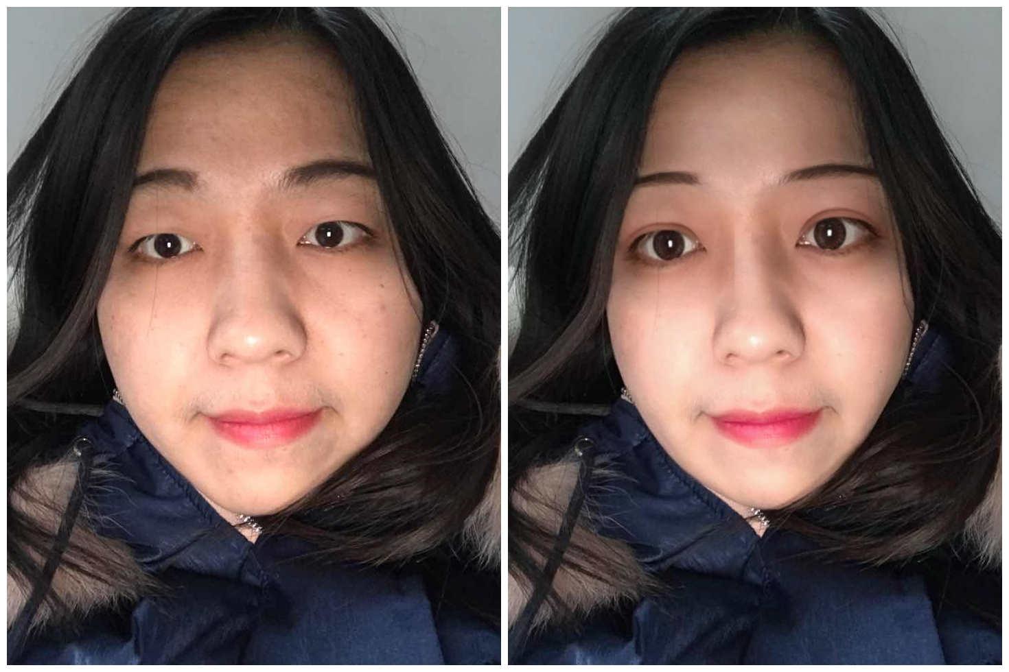 脸太大了怎么办,哪种手术能把脸变小。。。。。