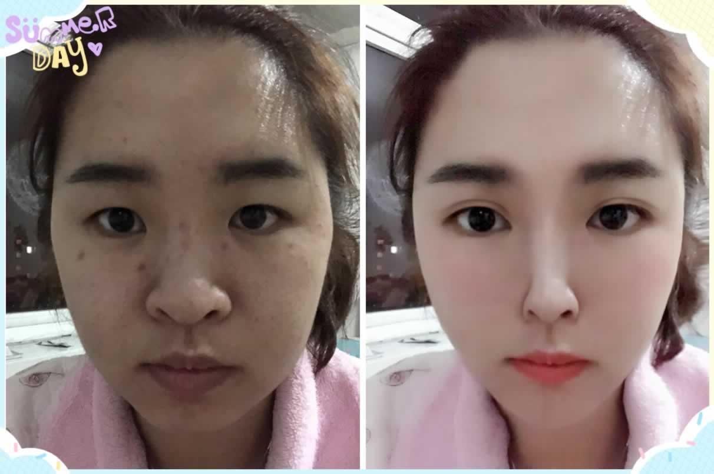 双眼皮疤痕药膏推荐有吗,刚做完切割双眼皮、想买一些防止增生疤痕的药膏涂抹、买什么牌子的呢
