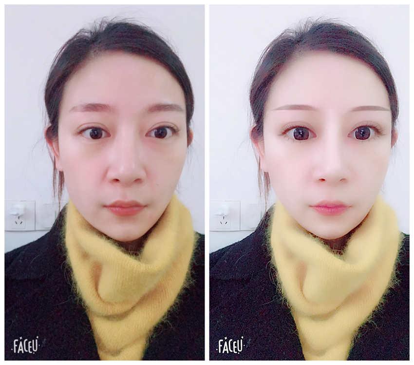 激光祛斑需要几次,广州美莱这边做好吗?求做过的有经验姐姐告诉。
