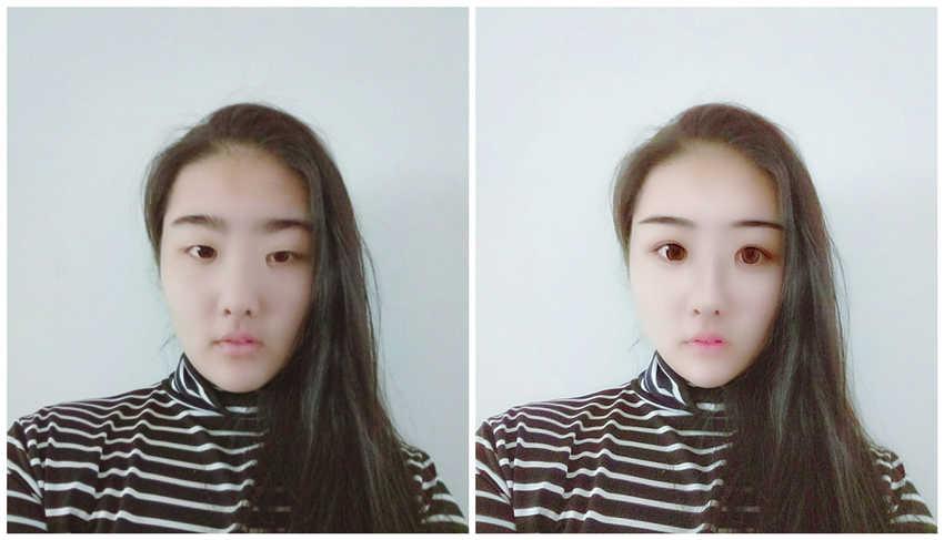割双眼皮要花多少钱,上海玫瑰医院哪个医生割双眼皮比较好