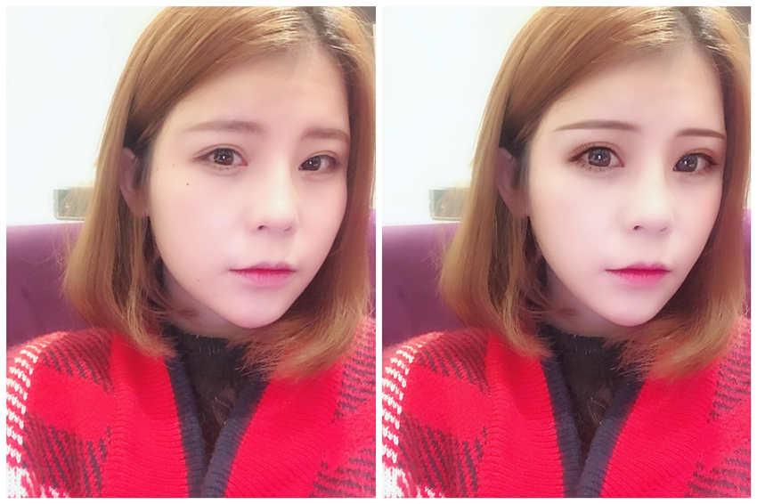 割双眼皮手术多长时间,请问上海第九人民医院哪个医生做双眼皮比较好,谢谢