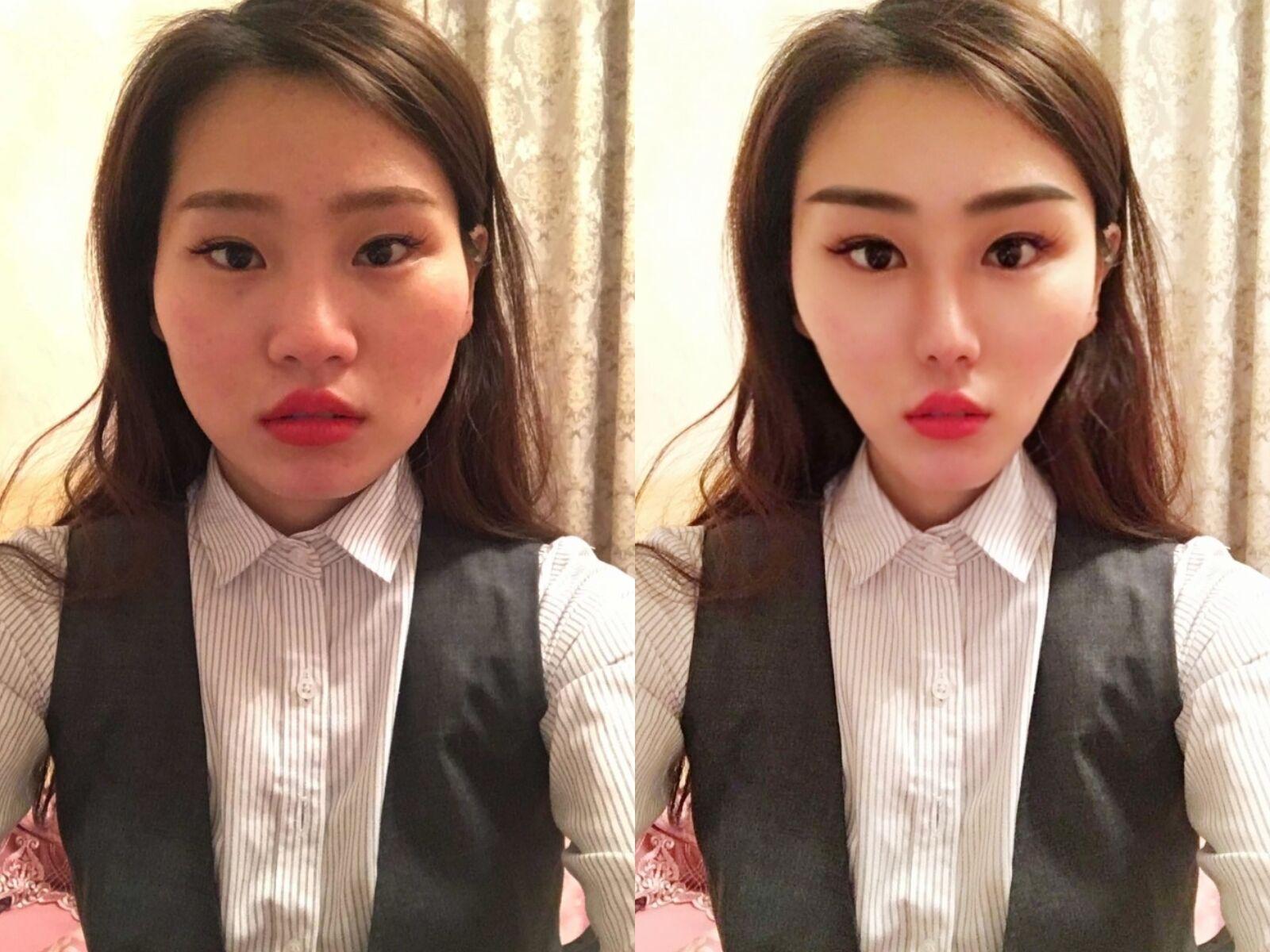 韩国隆鼻子修复好不好,5月份想去韩国做隆胸手术 和鼻子修复 想找个同伴一起啊 我在青岛