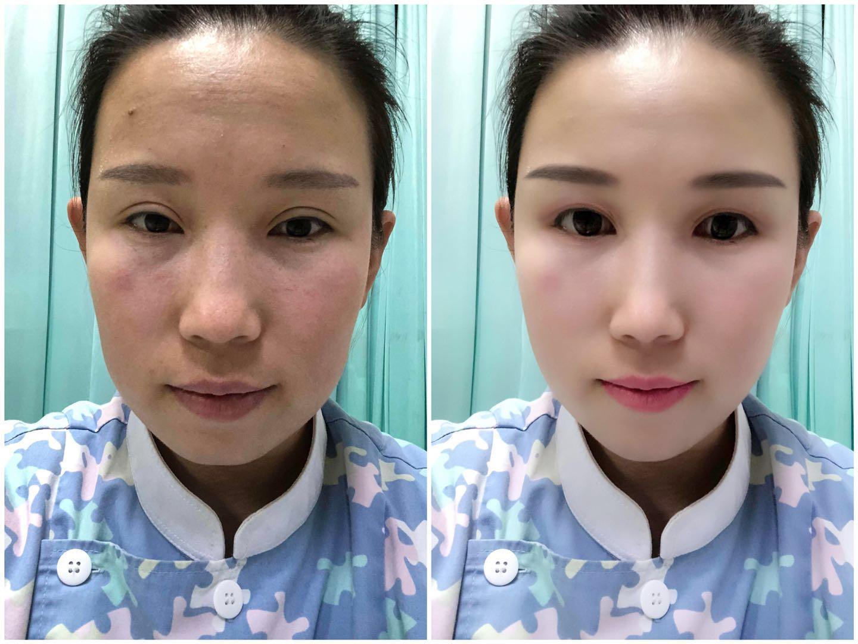 地包天手术危险吗,重庆有做地包天手术的吗,大概费用多少,有做过的吗?