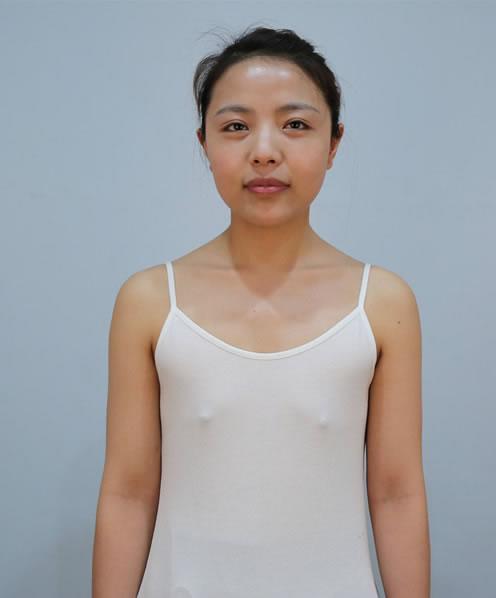 石家庄雅芳亚医疗美容医院假体丰胸手术让我很放心