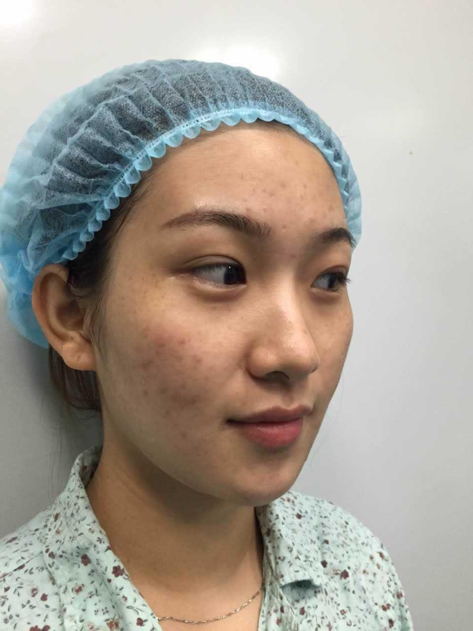 眼袋怎么去除—眼袋修复术靠谱吗?看起来特别的显老