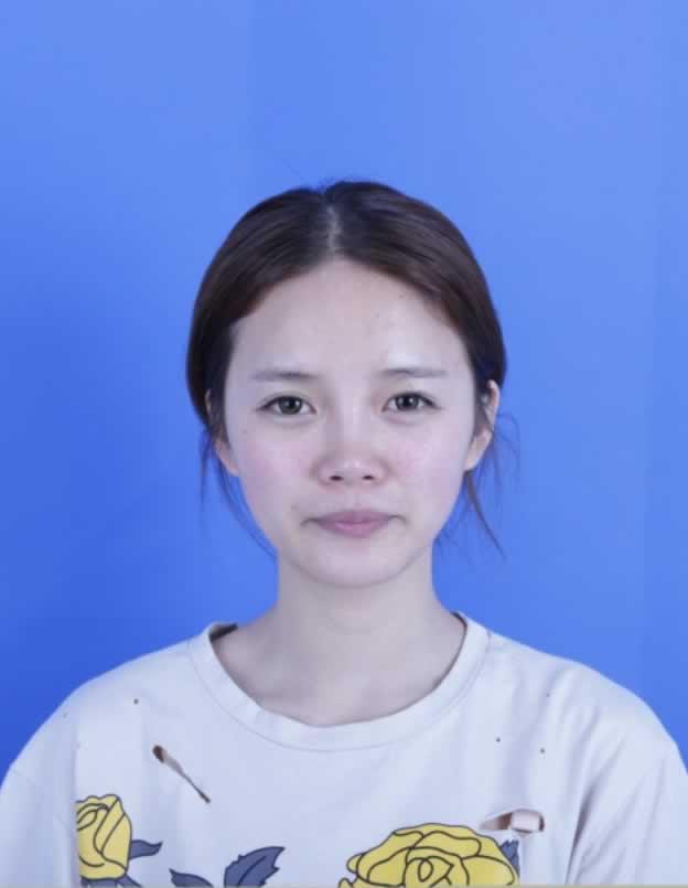 咬肌脸打瘦脸针瘦脸,那面部凹陷怎么办?各位去韩国整形 钱是怎么带去的啊?