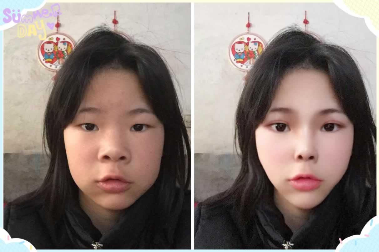 全切双眼皮和韩式双眼皮有什么区别????????