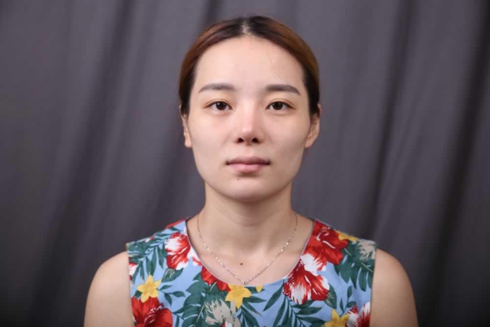 南京康美美容医院给我做的全脸自体脂肪填充很完美。