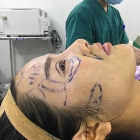 上海华美医疗美容医院进行的眼综合整形真的很好看