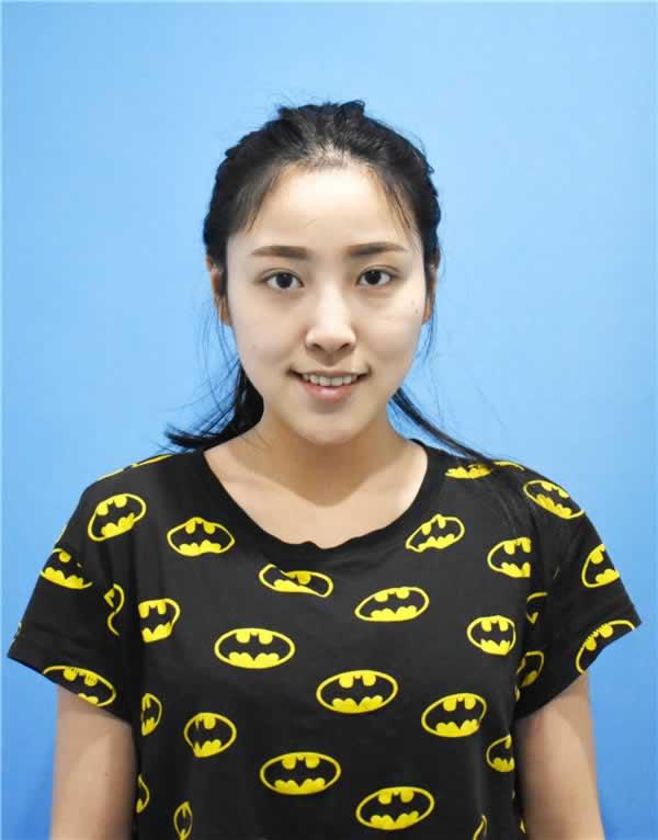 杭州鼻综合怎么样,在杭州,请问有那个医院比较好的?