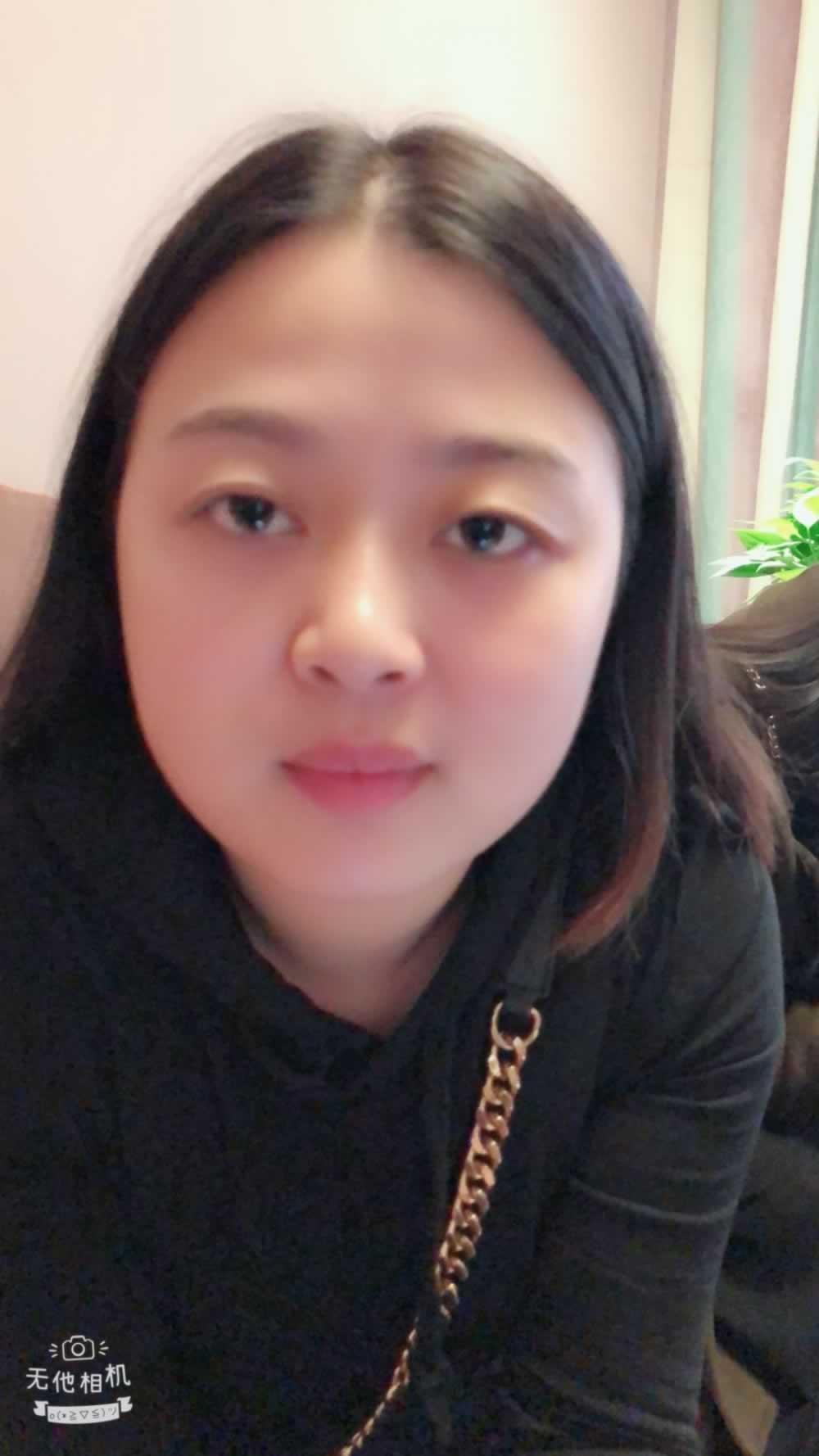 眉毛整形多少钱,我想做眼睛和眉毛,请问哪家医院做的好?我在河南