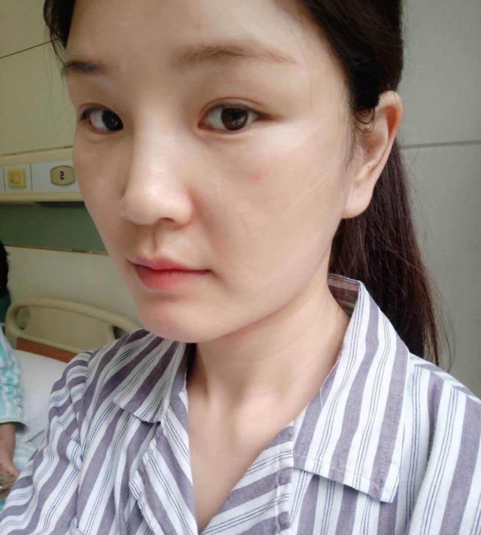 做鼻子有后遗症吗,想问一下杭州做鼻子的哪个医院或者哪个医生做的好?