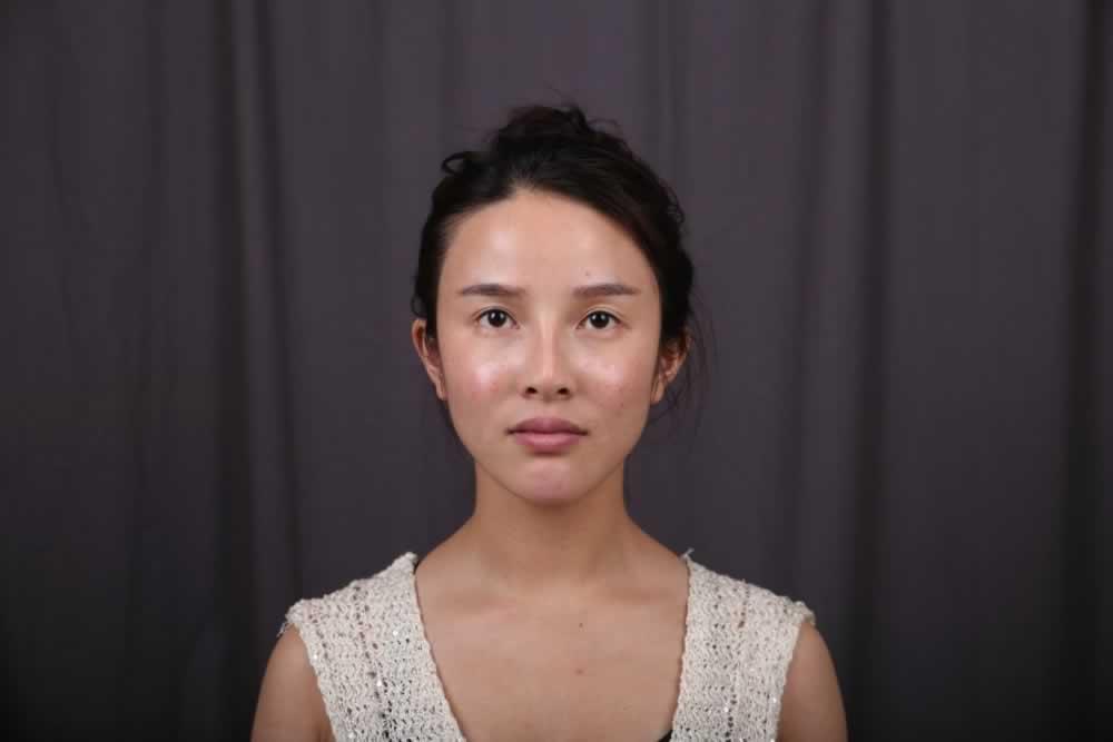 大家看看我在南京康美美容医院做的三个项目,眼整形+鼻整形+面部填充