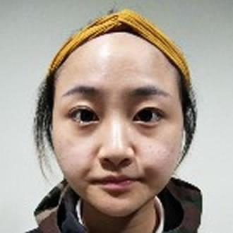 【干货】你对西安雁塔华旗唯美门诊部的瘦脸针知多少?