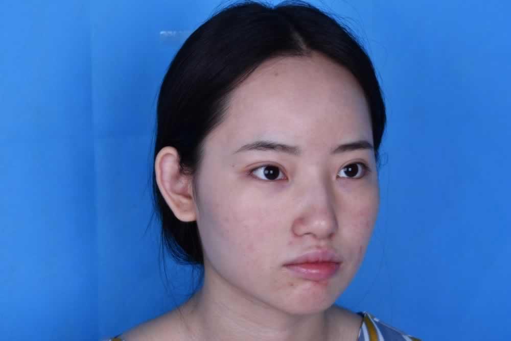 重庆五洲整形耳软骨隆鼻已经俩个月了,现在鼻子就是越来越自然咯