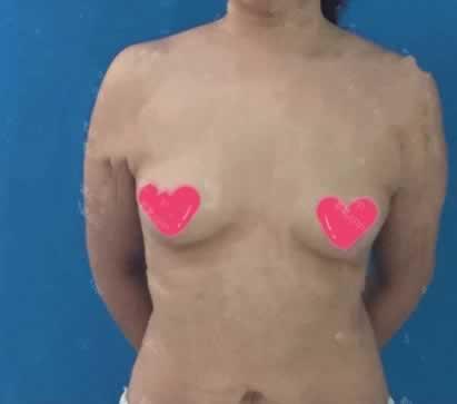 我来告诉大家北京美莱医疗美容医院假体隆胸术咋样