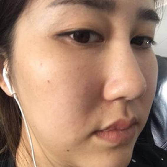 记录下YS plus妍世医学护肤中心超声刀最真实的效果!