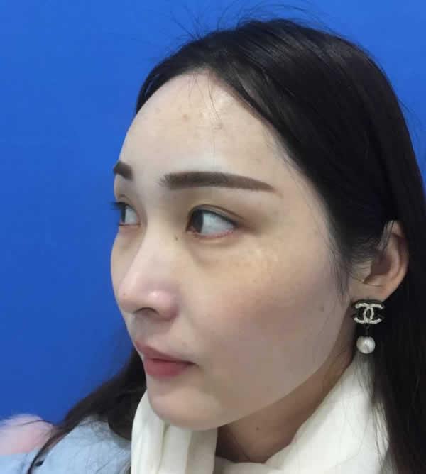 广州健丽医美不开刀去眼袋经历,爱熬夜的女生一定要看看