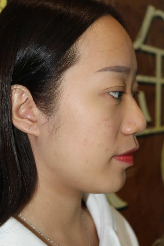 鼻综合手术已经过去一个月了,气色恢复的不错就算是素颜也是依然美丽