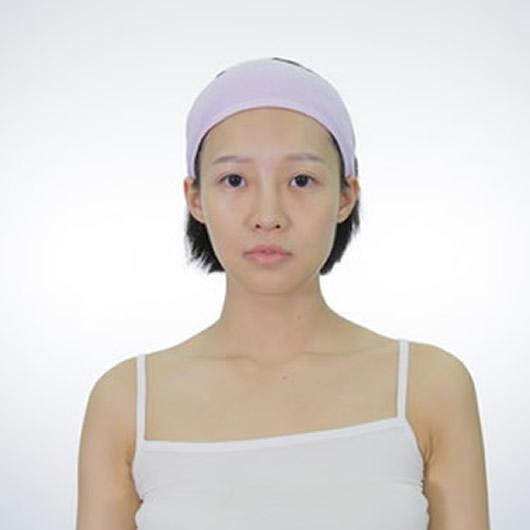 在广州曙光医学美容医院做的耳软骨复合隆鼻北鼻们来看看如何