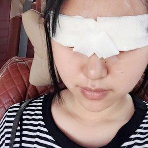 在医院做的切开式双眼皮整形经历帖子