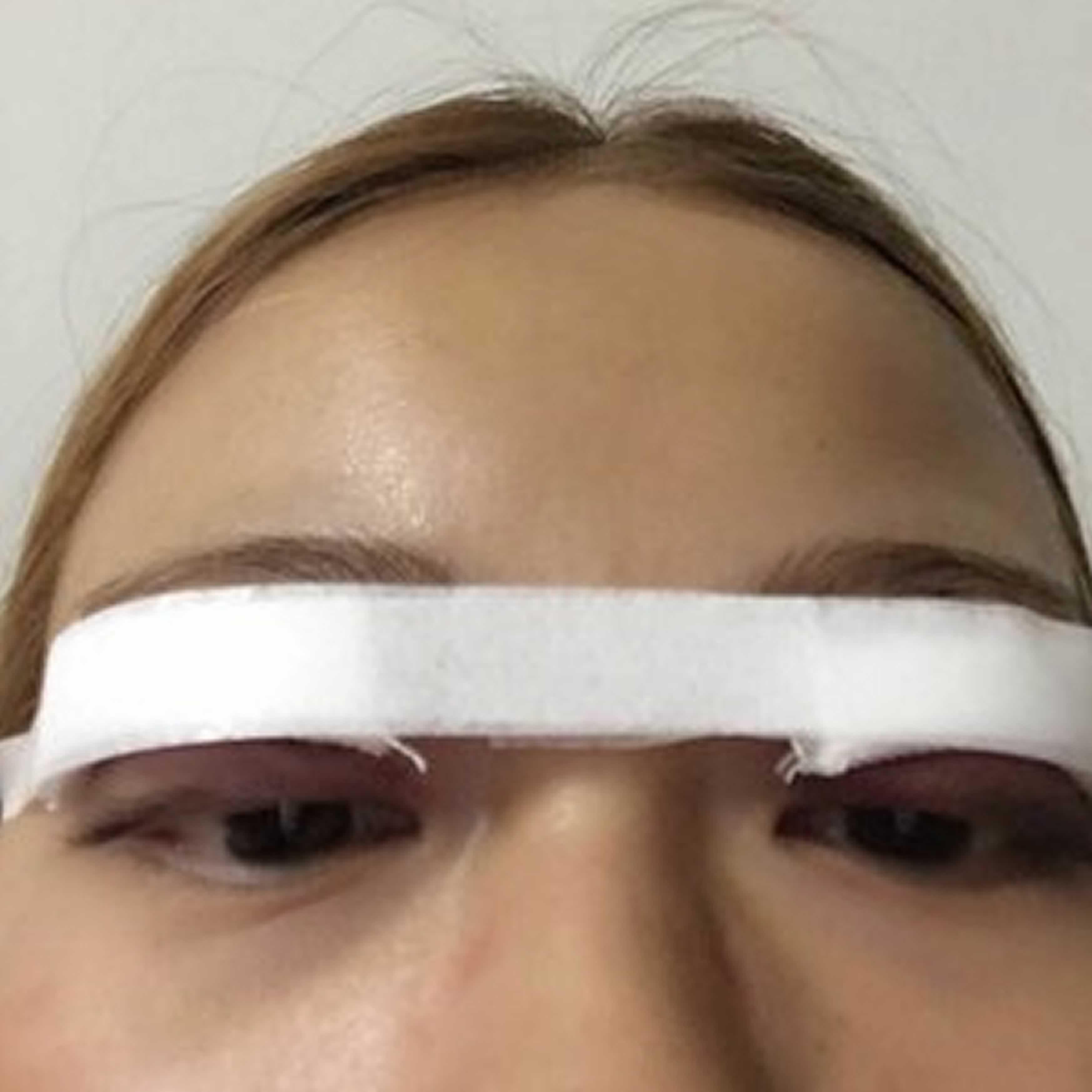 韩式三点式双眼皮恢复好就是超级无敌自然哦