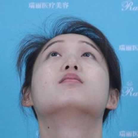 给你们看看我在芜湖瑞丽做的鼻综合,觉得效果怎么样
