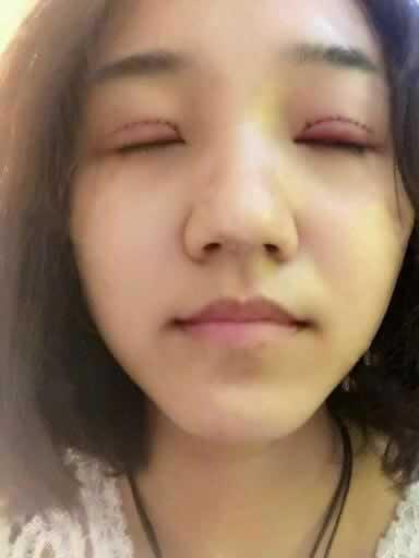 我在重庆五洲整形医院做的双眼皮,真的太自然太漂亮了。