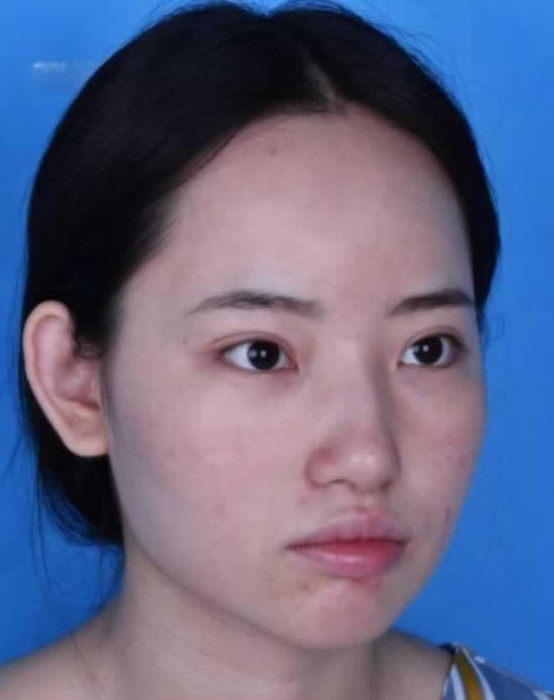 重庆五洲耳软骨隆鼻后颜值是不是高多了啊
