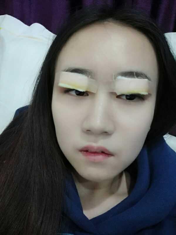 武汉伊美馨医疗美容医院的技术没得说,给我做的双眼皮 真的不要太好。