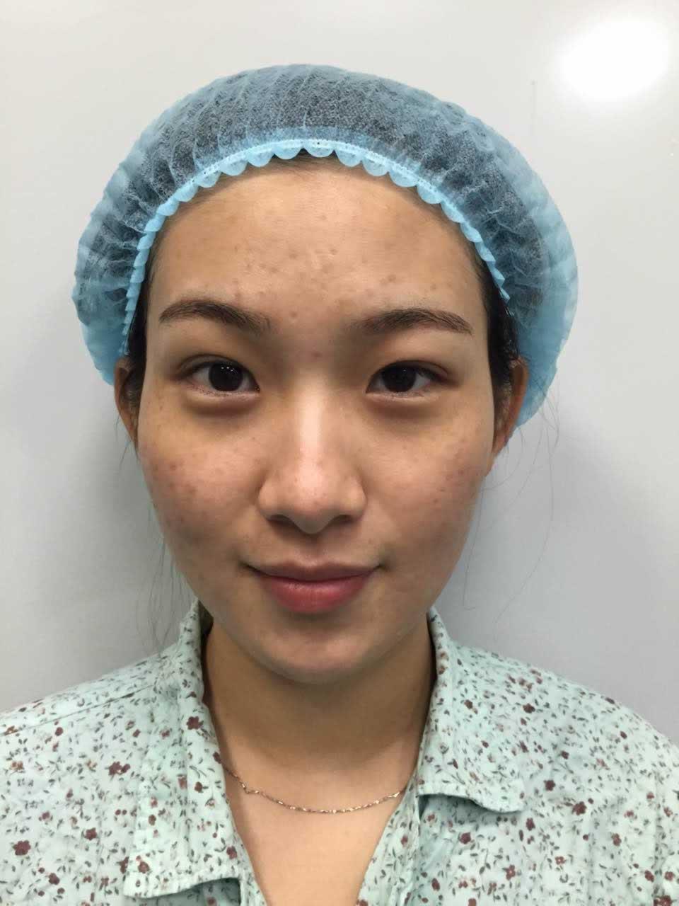做了全脸脂肪填充后,小护士都说我很像网红很漂亮