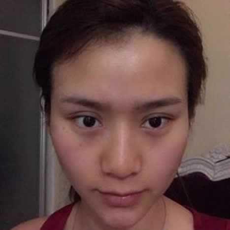 鼻综合前后对比照片,看看差距大吗?