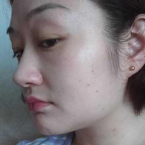 大家看看我的下颌角切除,侧脸女神